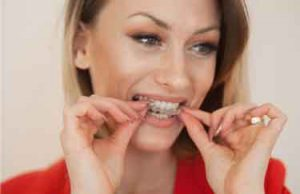 invisible teeth aligners cheap