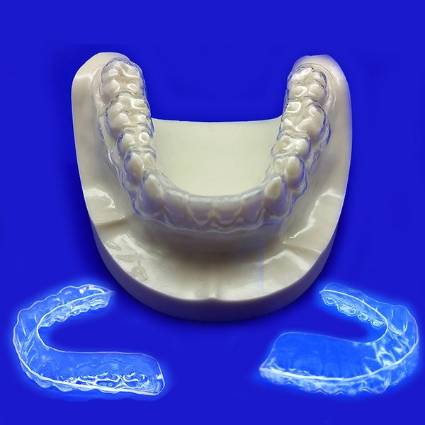 Clear Aligners- Minor Alignment