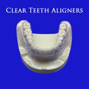 Cheap Invisible Aligners Online
