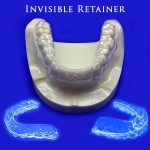 Invisible Retainer Cost