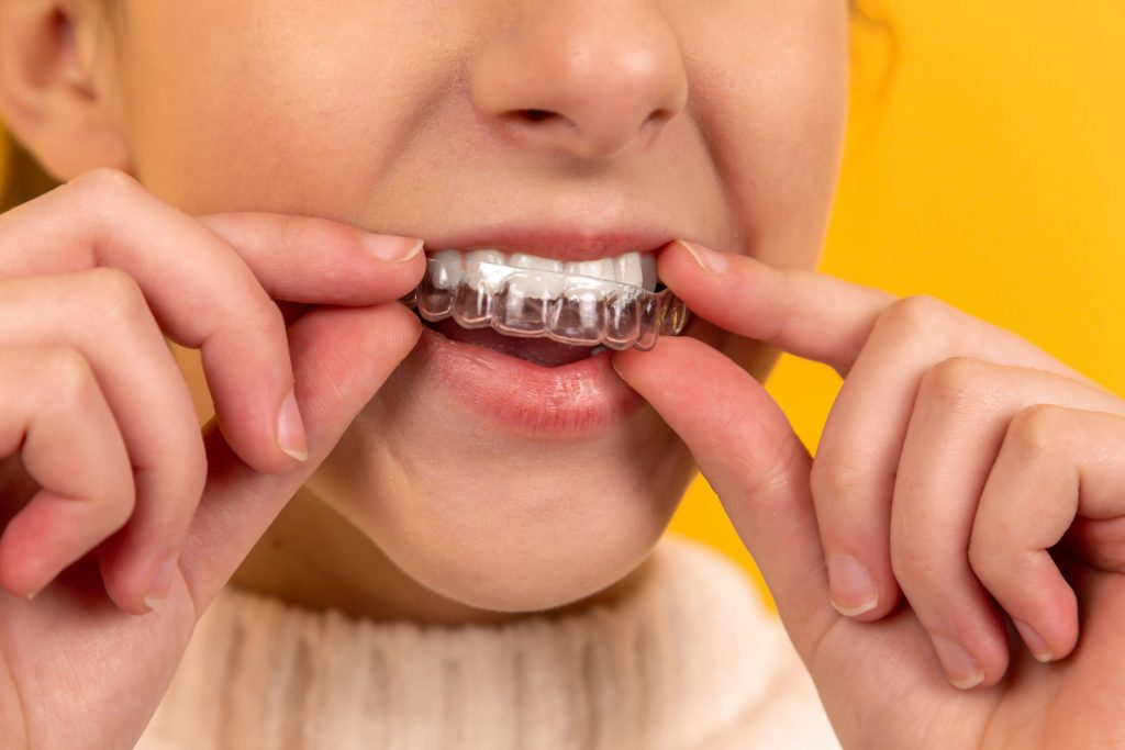 Invisible Aligners Cheap